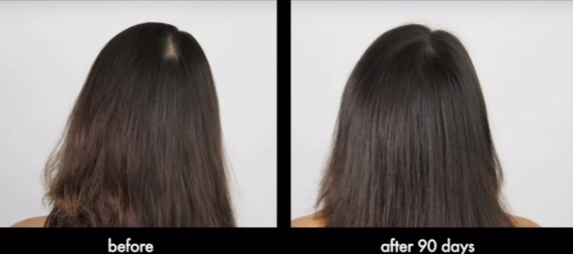 Female Hair Loss Treatment Toronto